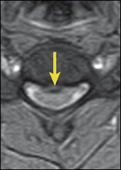 Upright Dynamic MRI Reveals Hidden Disc Herniation